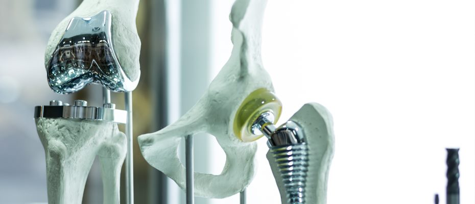 Саратов клиника по замене тазобедренного сустава